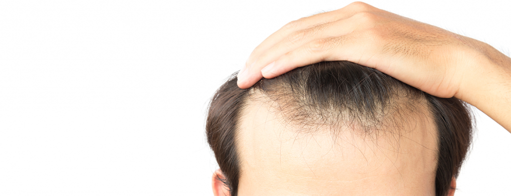 hair loss treatment for men